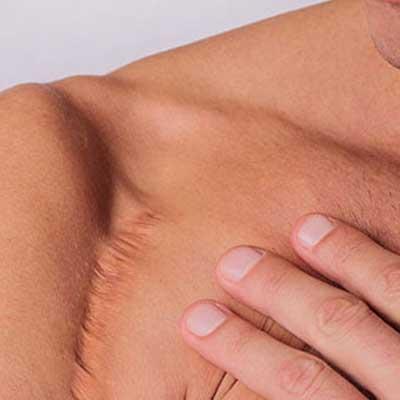 presentation cicatrice epaule reduire cicatrice Arnaud pezavant kine kinesitherapeute la baule