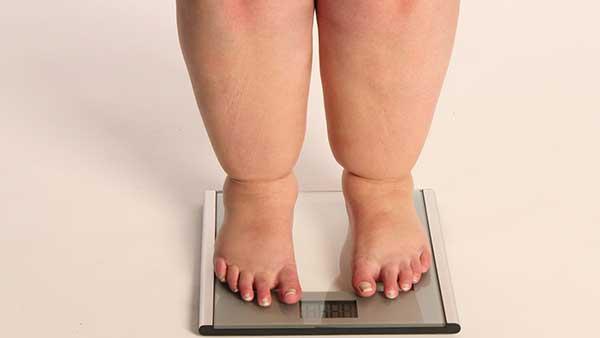 Surpoids et obesite traitement kinesitherapeutique Arnaud Pezavant