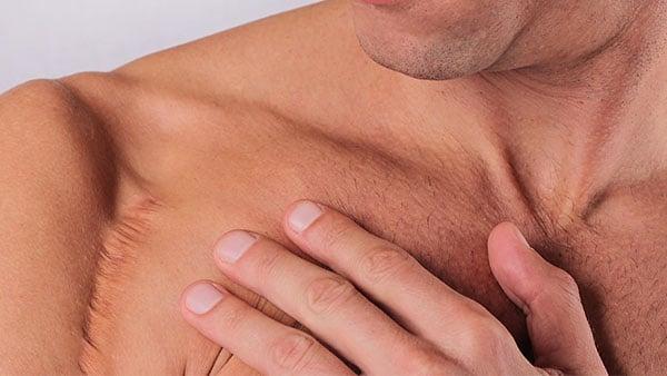 cicatrice epaule reduire cicatrice Arnaud pezavant kine kinesitherapeute la baule kiné